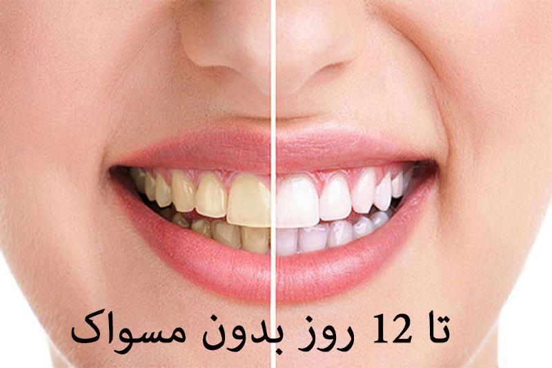 طرح توجیهی استارتاپ کانادا دستگاه سفید کننده دندان